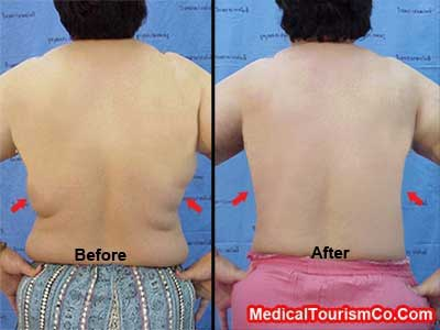 Liposuction Before-and-After