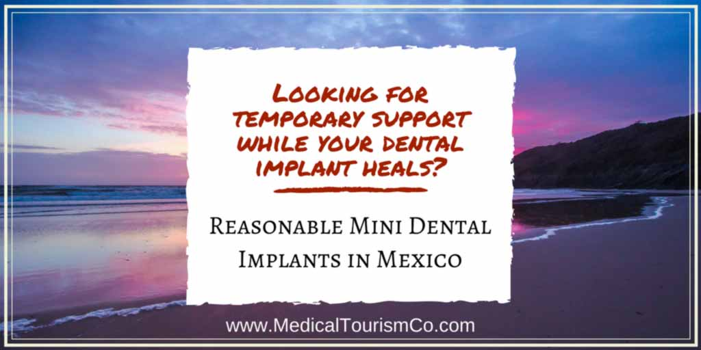 Looking-for-temporary-support-while-your-dental-implants-heals_-1.jpg