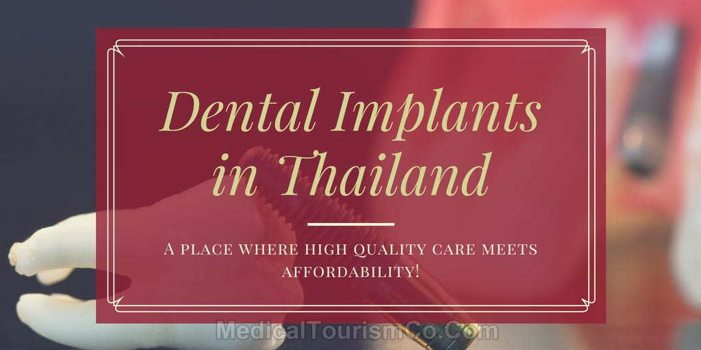 Dental-Implants-in-thailand.jpg