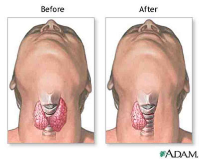 Before and After Thyroid Surgery