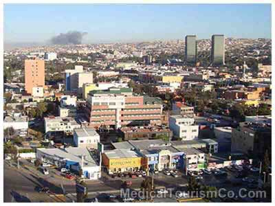 Bird's Eye View of Tijuana
