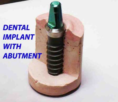 DENTAL IMPLANT With ABUTMENT
