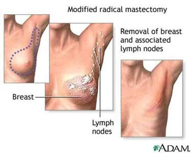 Radical Mastectomy
