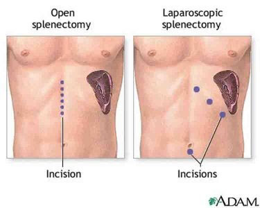 Splenectomy