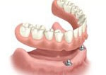 2 Dental Implants - Thailand