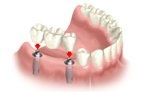Implant Porcelain Bridge