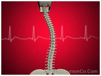 Scoliosis Surgery - India