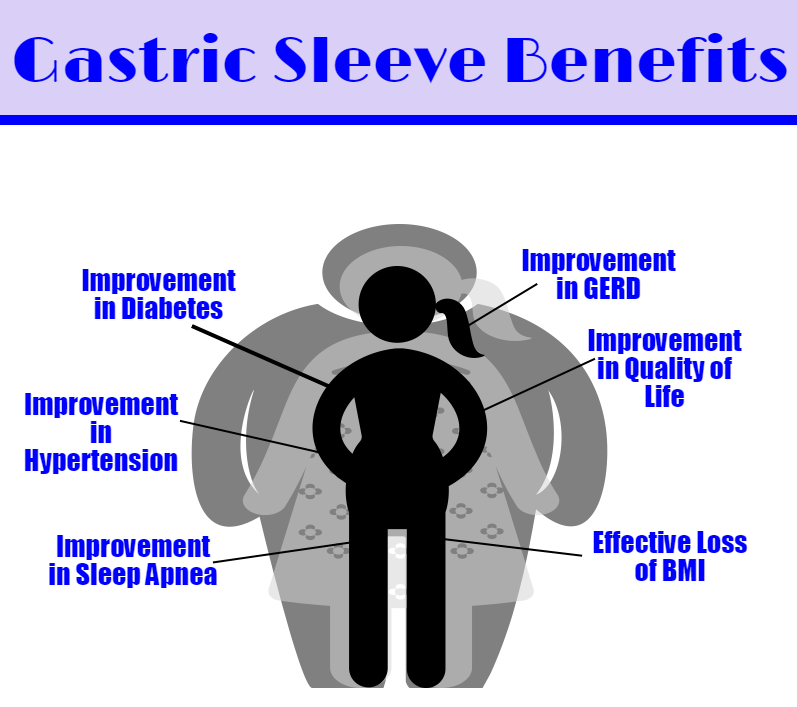 Gastric Sleeve Benefits