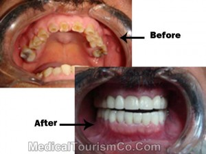 Bruxism Treated with Prettau Zirconia Bridges