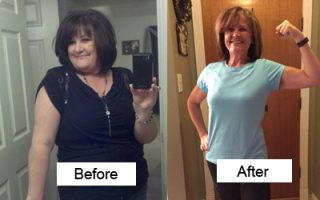 Bariatric - Before and After