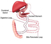 Duodenal Switch