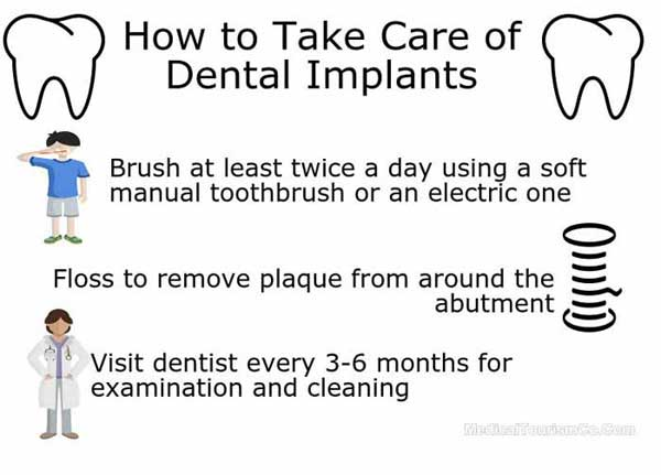 how-to-care-for-dental-implants