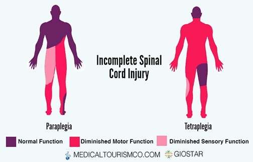 Incomplete-Spinal-Cord-Injury