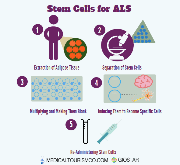 Stem-Cell-ALS-Therapy-in-Mexico