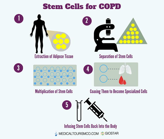 Stem-Cell-Treatment-for-COPD-in-Mexico