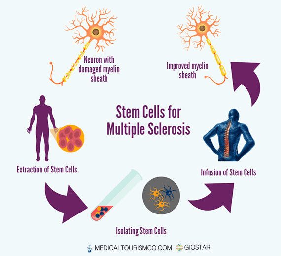 Stem-Cells-for-Multiple-Sclerosis-in-Mexico