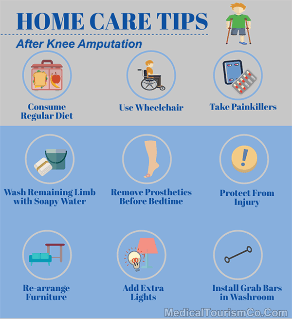 Home Care Tips Post Knee Amputation