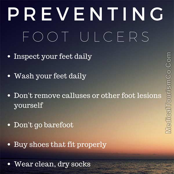 How To Prevent Foot Ulcers