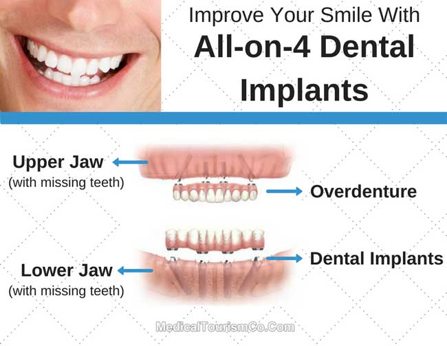 Improve Your Smile With All-on-4 Dental Implants