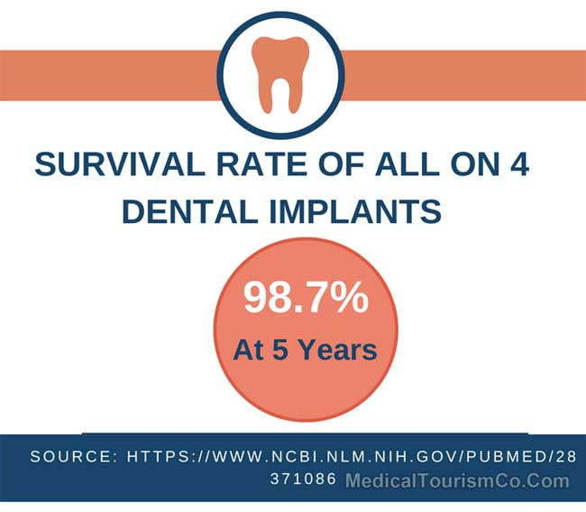 Survival Rate Of All-on-4 Dental Implants