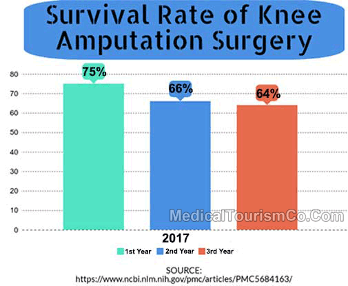 Survival Rate Of Knee Amputation Surgery