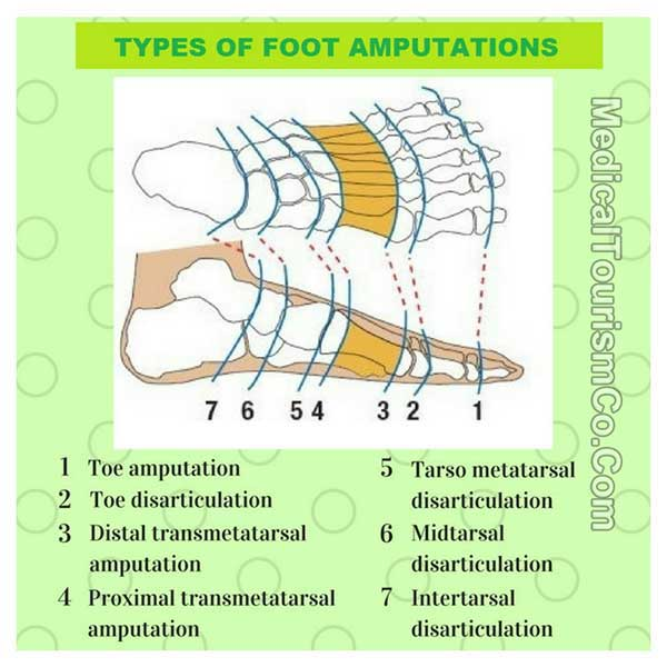 Types Of Toe And Foot Amputations
