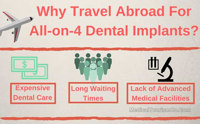 Why Medical Tourism For All-on-4 Dental Implants