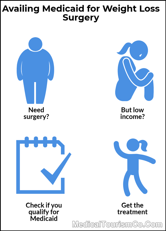 Medicaid for Weight Loss Surgery