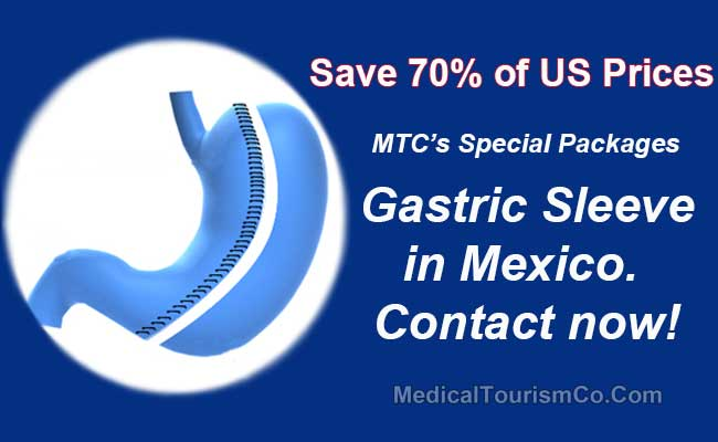 Gastric Sleeve in Mexico Discount