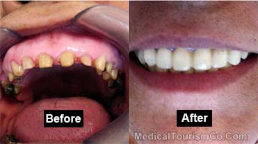 RamLanz Clinic - Mexicali Before-and-After
