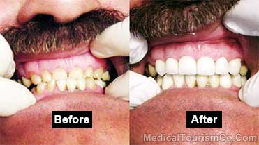 RamLanz Dental Clinic - Before-and-After