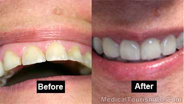 RamLanz Dental Clinic - Mexicali - Before-After