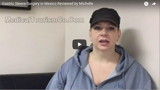weight-loss-surgery-mexico-review-1.jpg