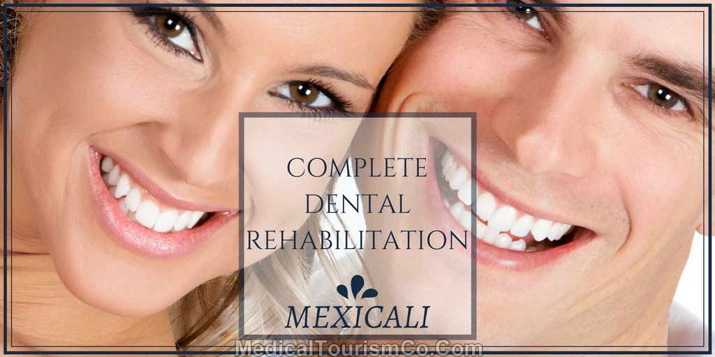Complete-dental-rehabilitation-in-Mexicali.jpg