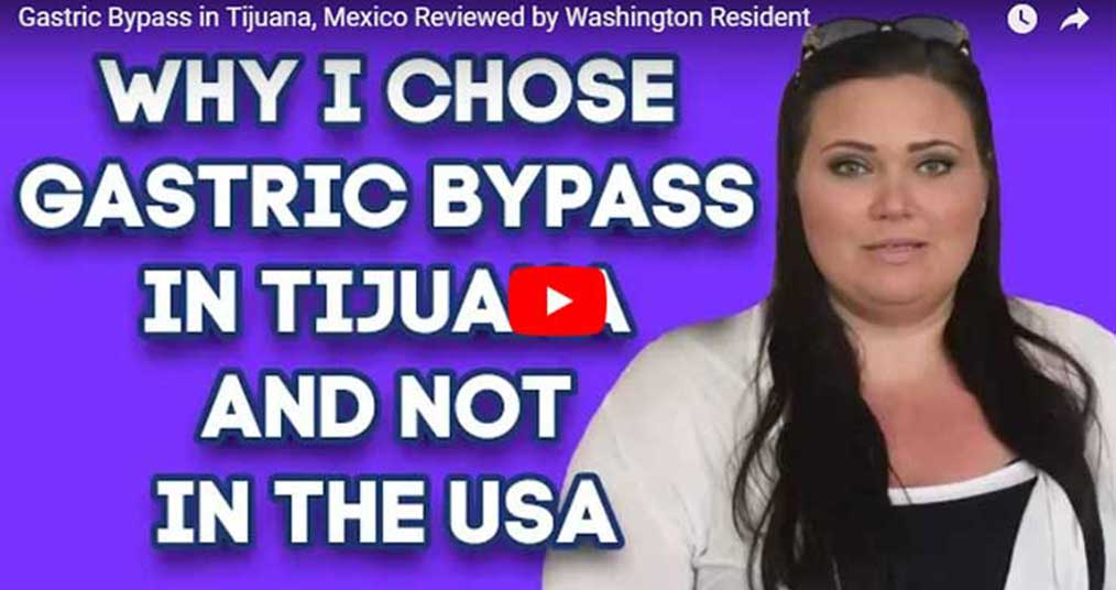 Why-I-Chose-gastric-Bypass-in-Tijuana.jpg