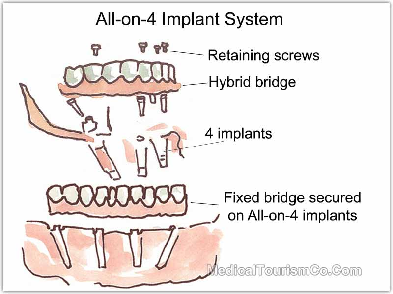 All-on-4 Dental Implants in Costa Rica
