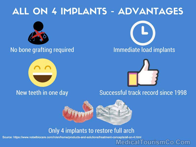All-on-4 Implants - Advantages