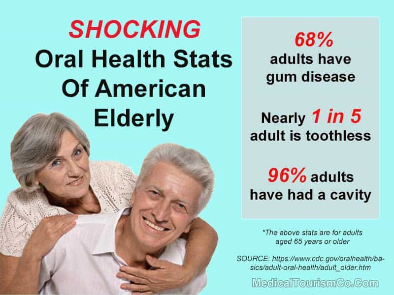 US Elderly Oral Health Stats