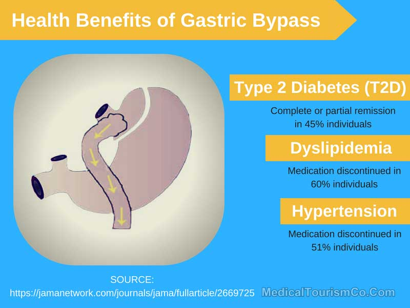 Health Benefits Of Gastric Bypass