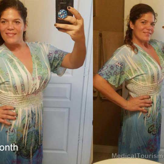 1 Month After Gastric Bypass Mexico