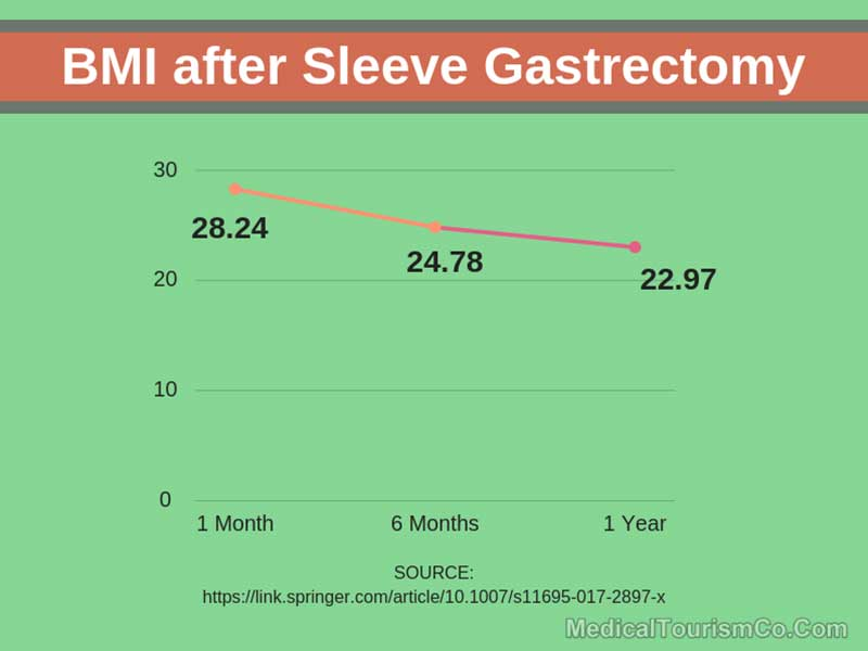 BMI After Sleeve Gastrectomy