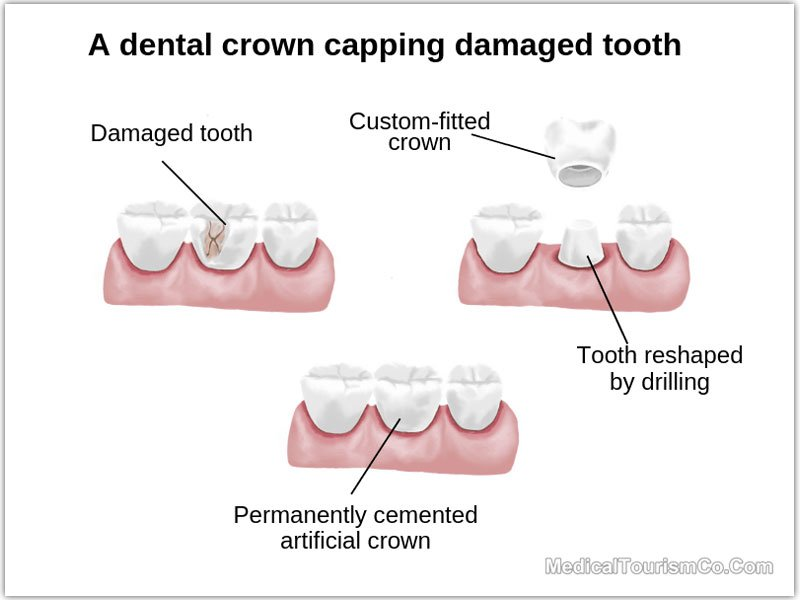 Dental-Crowns-in-Cancun---Mexico