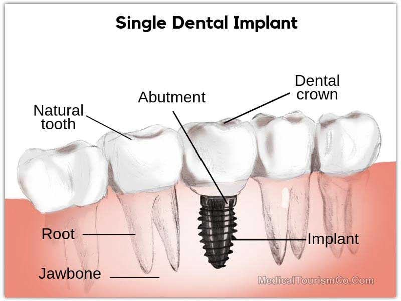Dental Implants in Cancun - Mexico