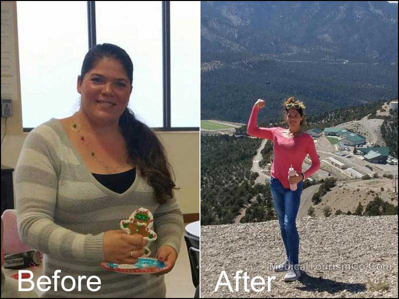 Gastric Bypass Before After Pic - Mexico