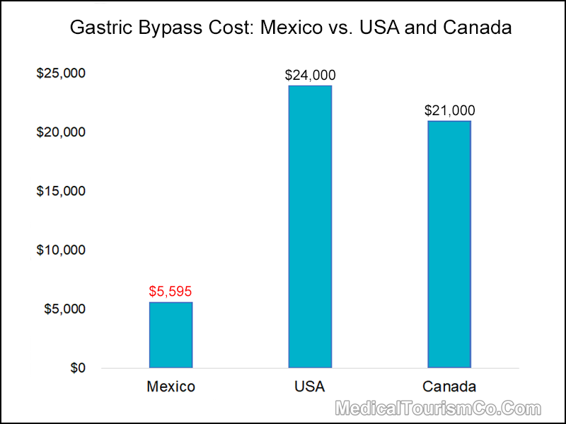 Cost of Gastric Bypass in Mexico vs. USA and Canada