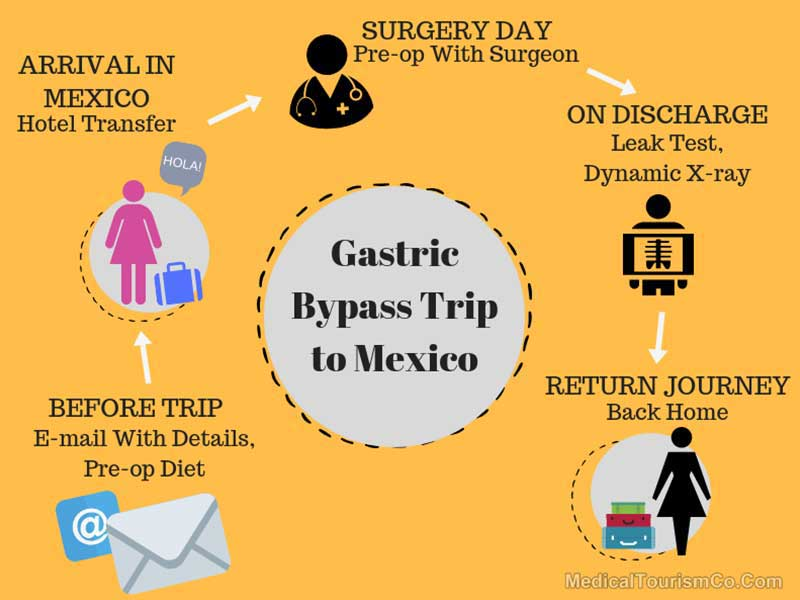 Gastric Bypass Trip To Mexico