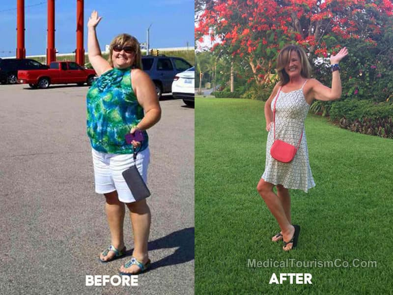 Before After Bariatric Sugery Mexico