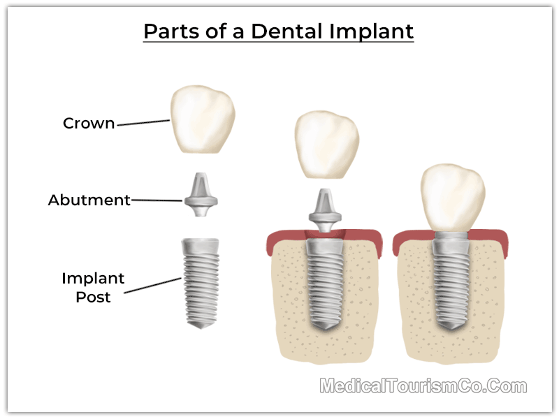 Parts of Dental Implants