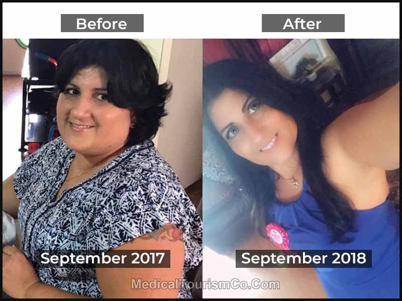 Bariatric Surgery Mexico Before After