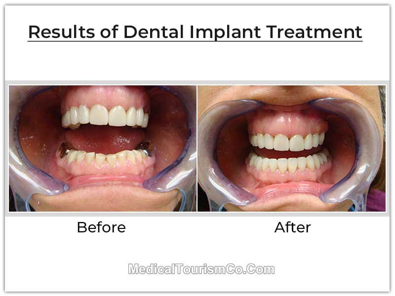 Dental Implants Mexico Before After